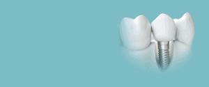 """Изображение на """"Услуги 13"""" в Dental Care Center"""