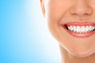 Ленти за избелване на зъби 3 - усмихната жена с бели зъби
