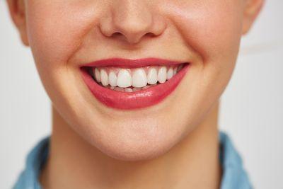 Избелване на зъби в домашни условия 1