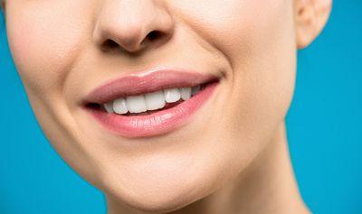 Почистване на зъбен камък цена 2